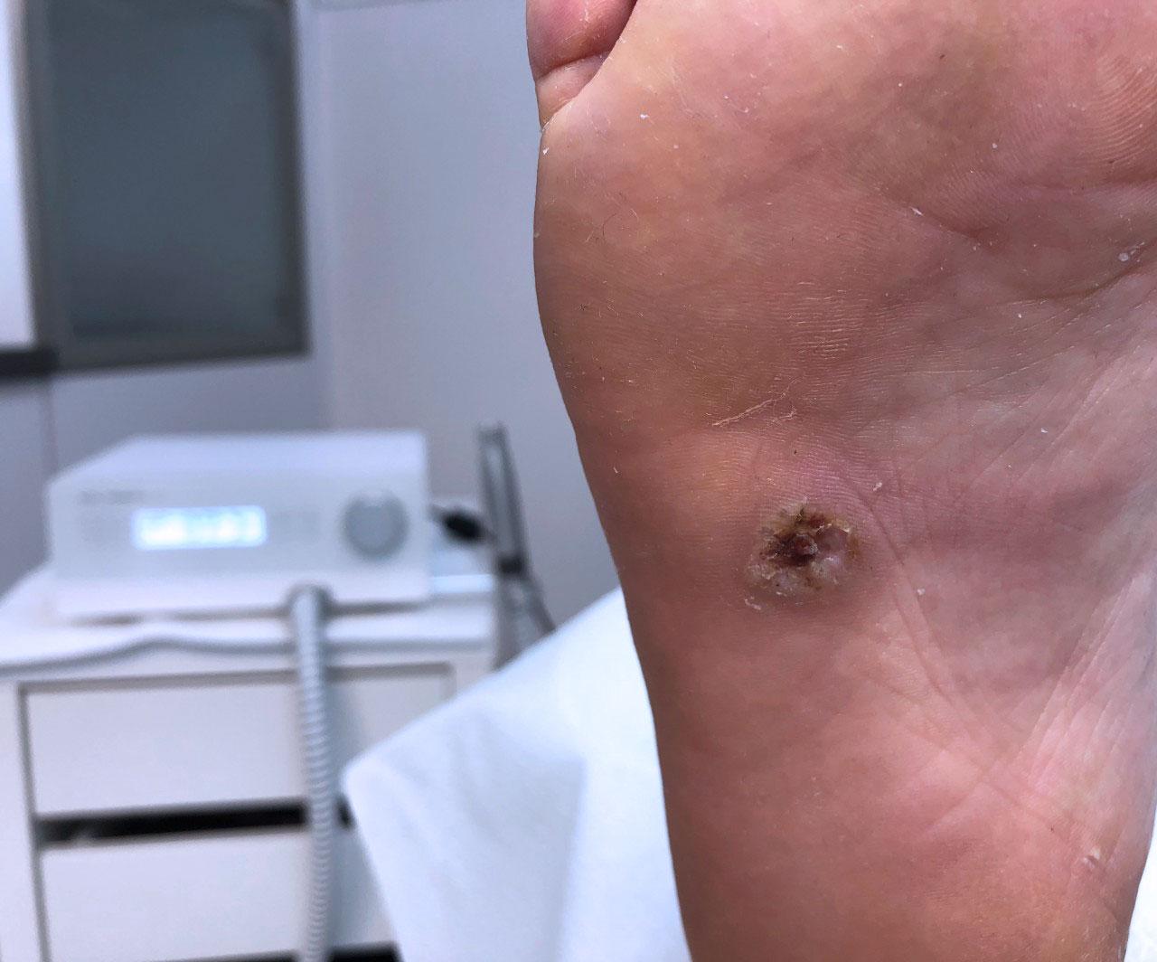 HPV víruskezelés)