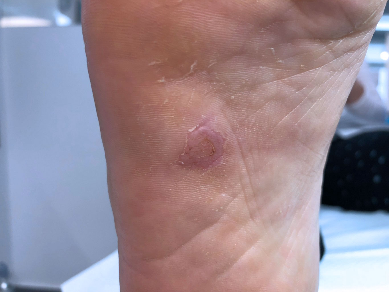 HPV tünetei és kezelése - Oktogon Medical Center